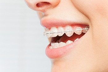 clear braces in rancho cucamonga