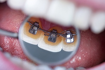 lingual braces in rancho cucamonga